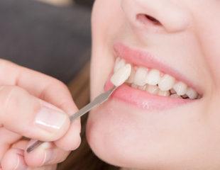 ارتودنسی سریع دندان با لمینت سرامیکی